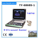 Ty-6868s-1 plus le scanner d'ultrason de l'ordinateur portatif B de PC