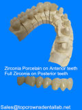 Volle keramische Zircominum Krone