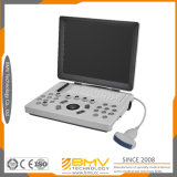 Bcu10 Hot Selling Portable Ultrasound Diagnostic Machine Ultrasound Scanner