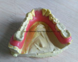 Dentadura de Valplast del laboratorio dental chino
