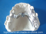 Parcial movible del cromo del cobalto de la dentadura hecho en el laboratorio dental de China