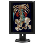 (E-2M21C) écran LCD médical de radiologie diagnostique de 2MP 1600X1200, ce