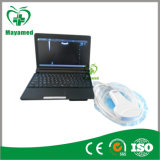 Ultraschall-Scanner des Laptop-My-A007