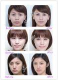 Injeção do enchimento do ácido hialurónico de Singfiller para a face profundamente