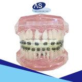 ブラケット-二重層の網縛っている歯科矯正学の自己