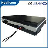 Ordenador portátil barato Doppler color Escáner Ultrasonido (HU-C60)
