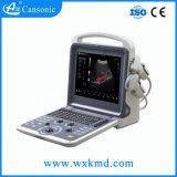 Escáner de Ultrasonido Doppler color portátil para Cardiología