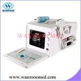 Scanner ultrasonique de diagnostic de chariot à Digitals de l'hôpital Us350