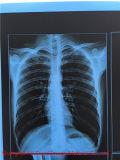 Пленка сини рентгеновского снимка печатание Inkjet любимчика медицинская