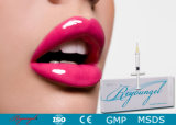 Remplissage cutané d'acide hyaluronique d'injection de Reyoungel pour la plénitude de languette (2.0ml)
