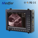 Caldo! MFC2018V Portable Color Doppler Ultrasound con CE