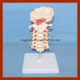 Modelo Tamaño de cuello uterino humano con los discos y los nervios espinales anatomía Modelo