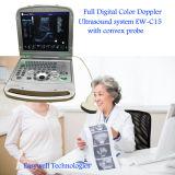 Ecografia Ew-C15 de Doppler do fluxo da cor do portátil do diodo emissor de luz Minitor de 15 polegadas com ponta de prova convexa para o diagnóstico abdominal
