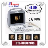 Scanner d'échographie-Doppler de l'équipement médical 4D Digitals