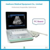 Huss-9 Portátil B / W escáner de ultrasonido