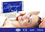 Remplissage cutané injectable d'acide hyaluronique de Reyoungel pour l'augmentation de languette