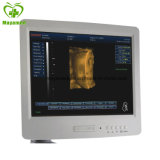 My-A021 3D Full Digital Movable Ultrasound Machine Scanner