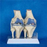 病気の比較の医学の製品の膝関節骨組教授モデル(R020904)