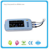 Battery를 가진 나 C001의 Portable 및 Handheld Easy Operate Patient Monitor