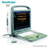 Машина ультразвука Doppler Sonoscape S2 цвета портативная пишущая машинка 3D стационара медицинская