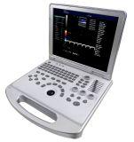 病院の医療機器の携帯用超音波機械価格