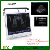 Bewegliches Flat B/W Ultrasound Machine mit Touch Screen