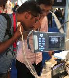 Spezieller Ultraschall-Diagnosescanner Ew-B10 Palmen-Entwurfs-Digital-B/W mit linearem Fühler L7l40 für kleine Teil-Prüfung