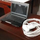 B 최빈값 휴대용 퍼스널 컴퓨터 유형 소형 초음파 스캐너 진단 장비