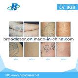 Rimozione all'ingrosso del tatuaggio della macchina del laser del ND YAG dell'Q-Interruttore