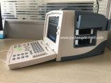Scanner portatile pieno ultrasonico di ultrasuono di Digitahi delle attrezzature mediche del Ce nuovo