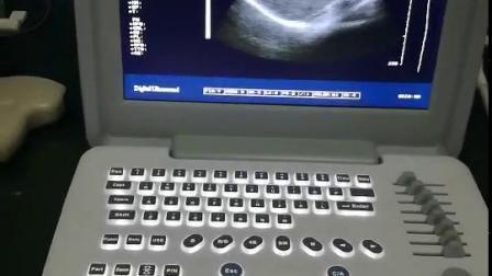 """Notebook portatile a ultrasuoni B/N da 12"""" con ultrasuoni in bianco e nero Per la clinica ospedaliera"""