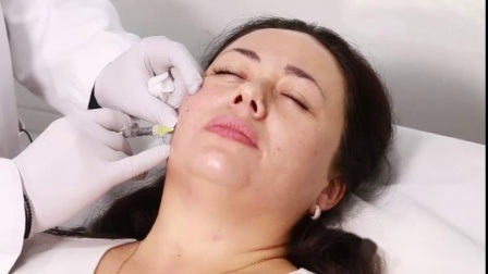 1ml de 2ml 10ml de ácido hialurónico inyectable de relleno dérmico de grado médico para el reborde