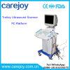 PC Platform Full Digital Trolley Ultrasound Machine / Scanner Rus-9000c -Maggie