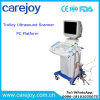 PC Platform Full Digital Trolley Ultrasound Machine / Scanner