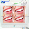 15 Inch Wired Dental Monitor Oral Camera System All in One VGA+Video+USB Hesperus