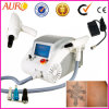 Professional Tattoo Laser Removal Machine