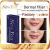 Hot-Sale Dermal Filler Injections Hyaluronic Acid for Lip Fullness