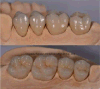 Dental Prosthetic for Clinic From Chinese Dental Lab