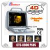 3D/4D ultrasound imaging system