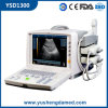 PC Platform Cheapest Medical Machine Portable Full Digital Ultrasound Scanner