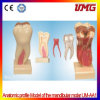 China Dental Supplies Anatomic Profile Model of The Mandibular Molar