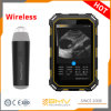 Portable Ultrasound Imaging Diagnostic Equipment Wireless Ultrasound Scanner