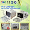 Thr-Us6601 Medical Portable Ultrasound Devices