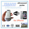 Latest Convex Linear Apple&Android Portable Ultrasound Machine