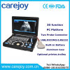 New Laptop Ultrasound Machine/Scanner Ultrasonograph for Cardiac Urology Measurement Convex Linear Micro-Convex Transvaginal Rectal Probe Option-Candice