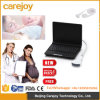 Laptop Medical Ultrasound Scanner Diagnostic Ultrasonic Machine Ce Approved- Candice