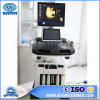 Usc900 Hospital 4D Portable Color Doppler Trolley Therapy Ultrasound Scanner