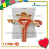 Female Pathological 3D Plastic Uterus Ovary Anatomical Model