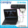 Laptop Ultrasound Machine Scanner Diagnostic System Ultrasonic Equipment with Convex Probe Sony Video Printer Optional -Maggie