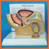 R110214 Human Diseased Male Urinary/Pelvis Model, Prostate Cancer Model and Bph Model